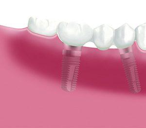 Implante Dientes 3