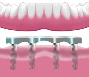 Implantes Dentales 4
