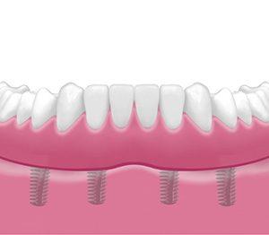 Implantes Dentales 6