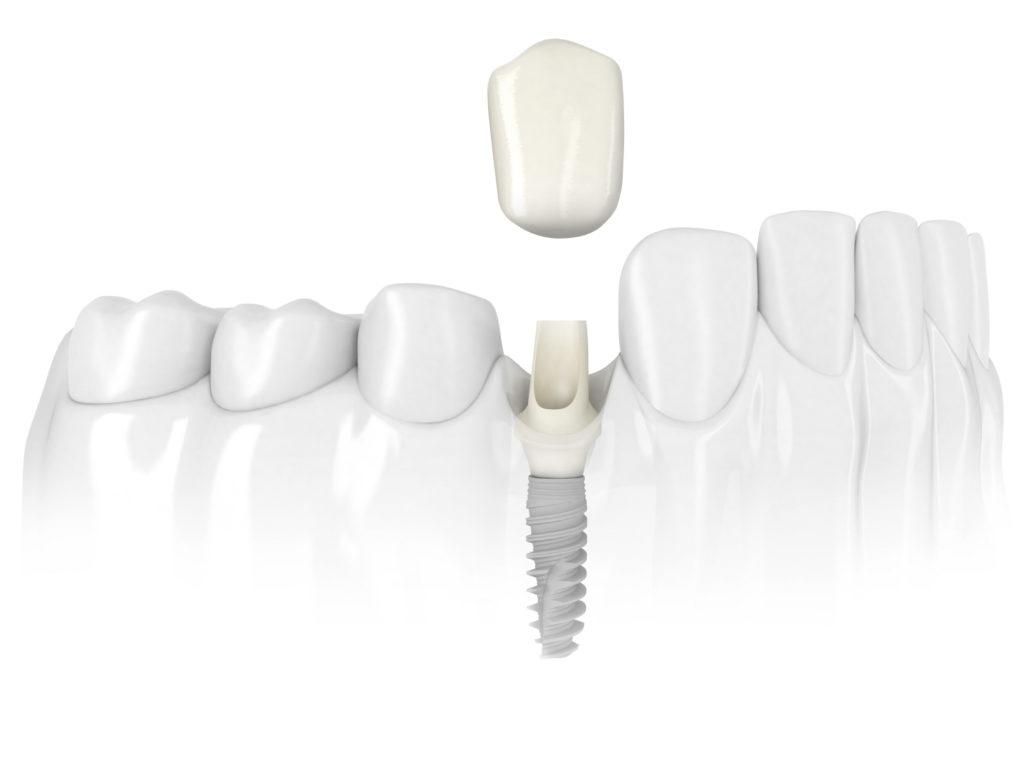 Implantes De Un Diente