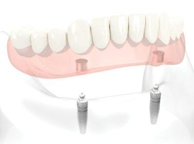 Implantes De Dentadura Completa